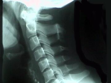 A normal neck
